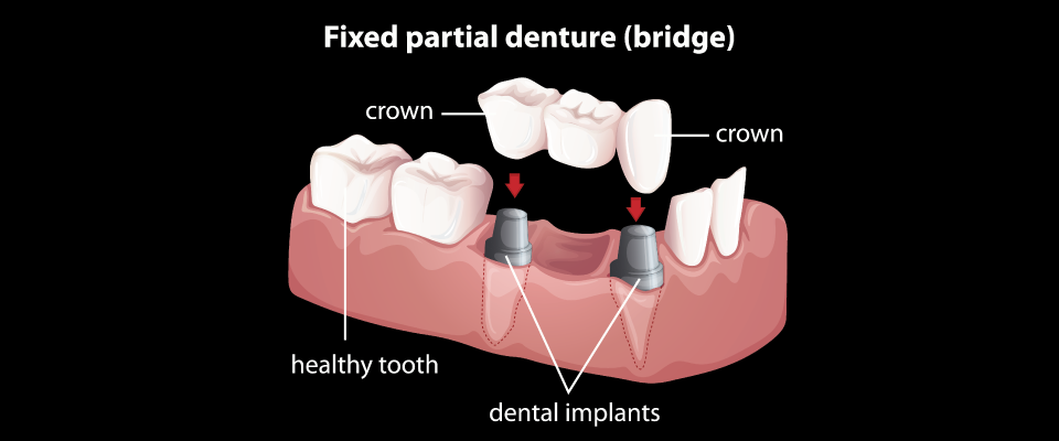 Clareview Area Dental - 10DB1B0F08BD.png