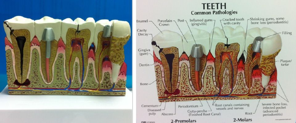 Tooth diagram