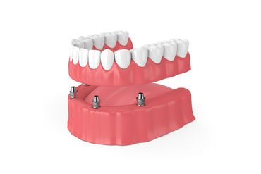 a view of implant dentures