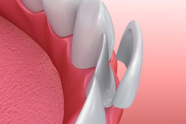 a view of dental veneers
